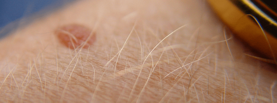 бенки-на-кожата