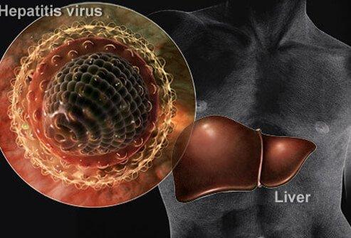 хепатит-причини-лечение