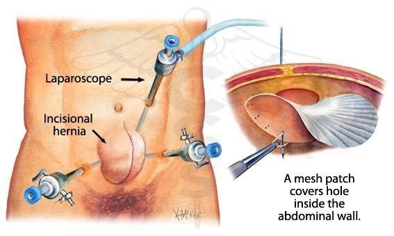 лапароскопия-херния