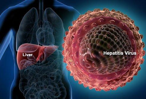 хепатит - видове, лечение