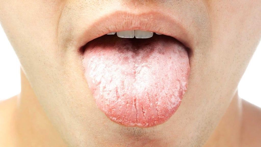 Кандидоза на кожата: Причини, симптоми и лечение
