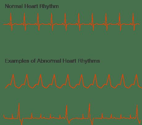 какво е аритмия