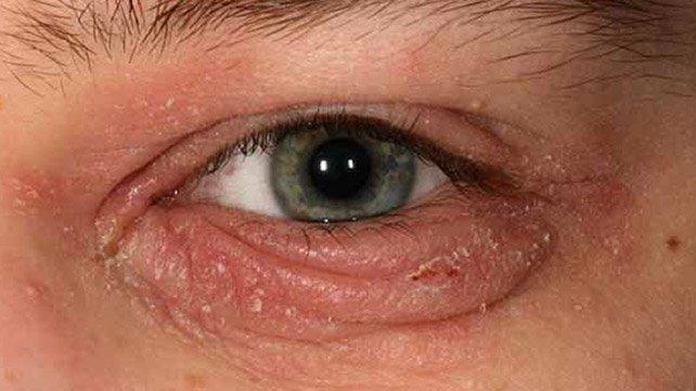 Блефарит: 7 природни лечения за успокояване