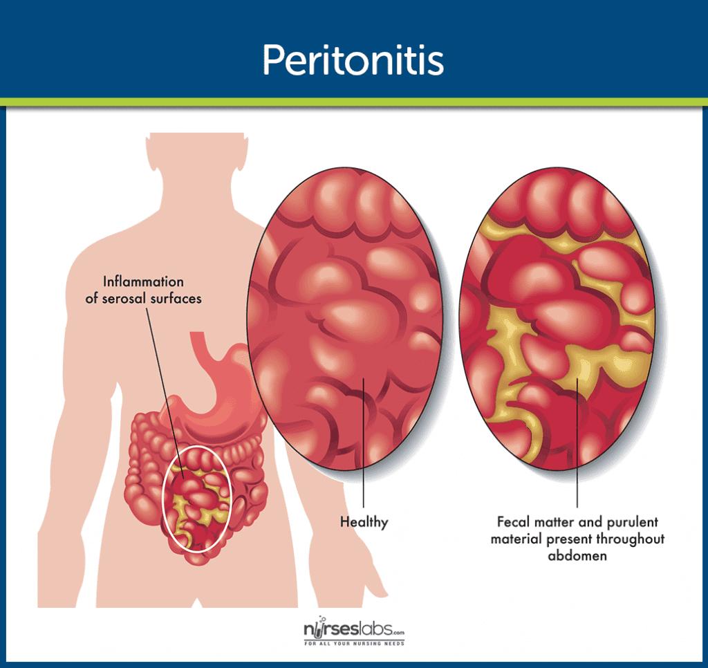 Перитонит: Причини, Симптоми и Лечение