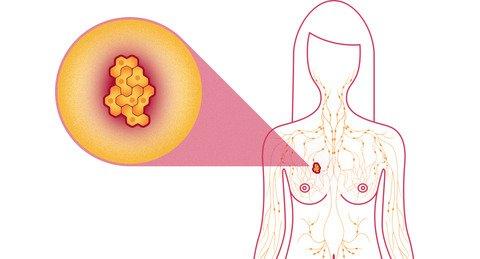 домашни средства за рак на гърдата