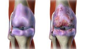 Остеоартритът