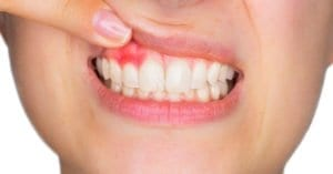 Най-честите причини за болки във венците