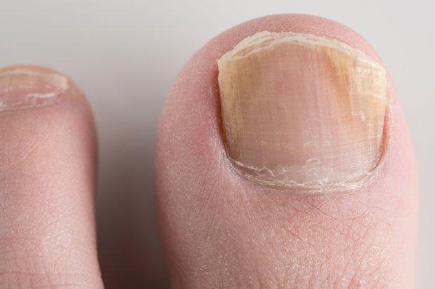 Гъбички-по-ноктите-на-краката