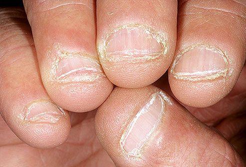 гъбички-причини-лечение
