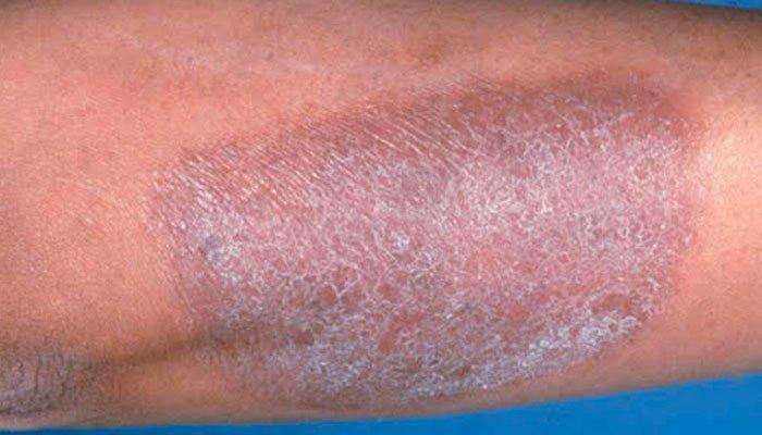 Лечение-Атопичен-дерматит