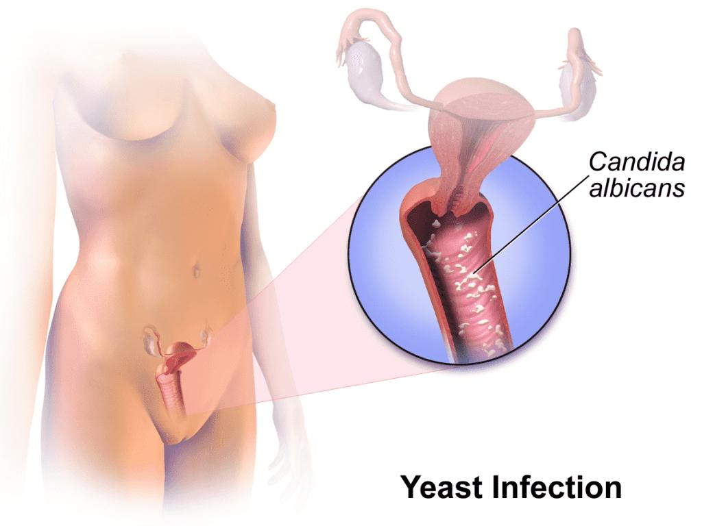 какво-е-вагинална-инфкеция