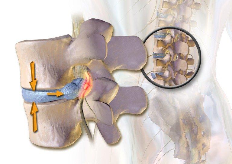 подхлъзвани дискове и болки в гърба