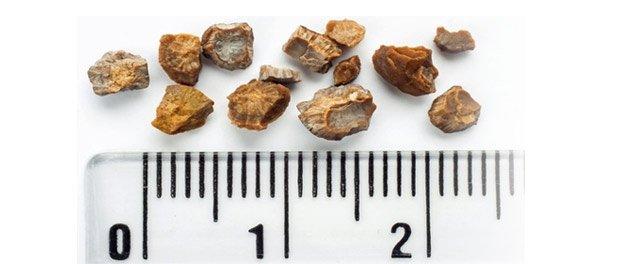 камъни-в-бъбреците-лечение-причини