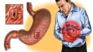 Гастрит е едно от най-често срещаните заболявания на стомашната лигавица