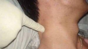 Лимфом: Видове, причини,лечение