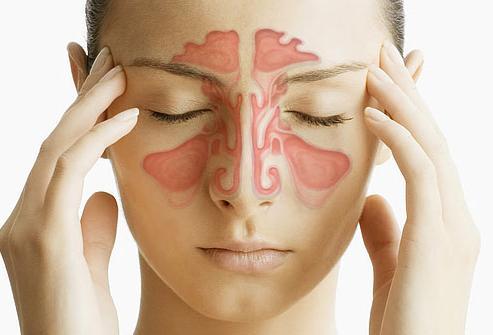 симптоми-на-синузит