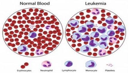 левкемия-видове-какво-е