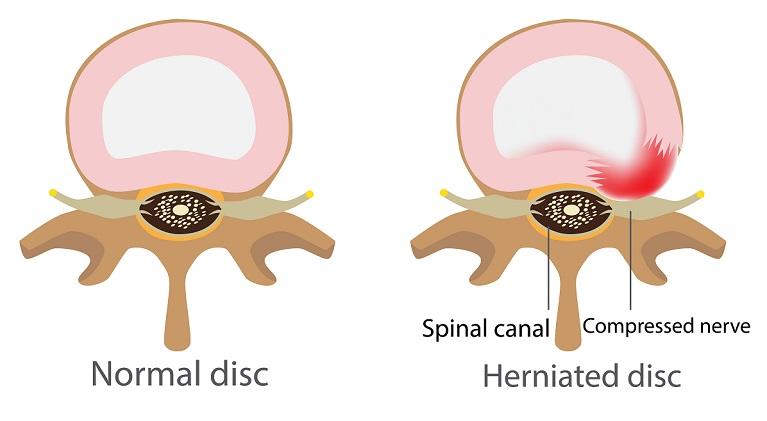 дискова-херния-причини-лечение