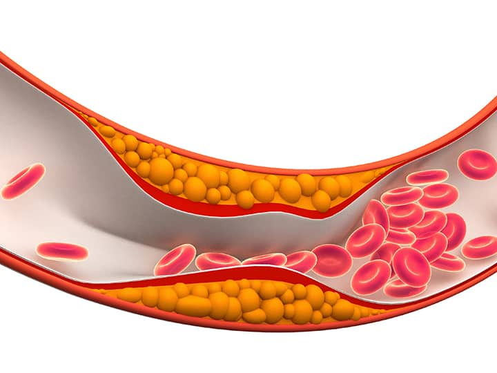 Причини-за-Атеросклероза-720 × 540