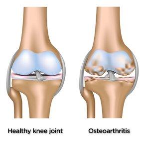 Болка в коляното след като се изправя
