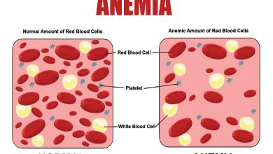 Photo of Анемия – видове, симптоми и топ причини за болестта