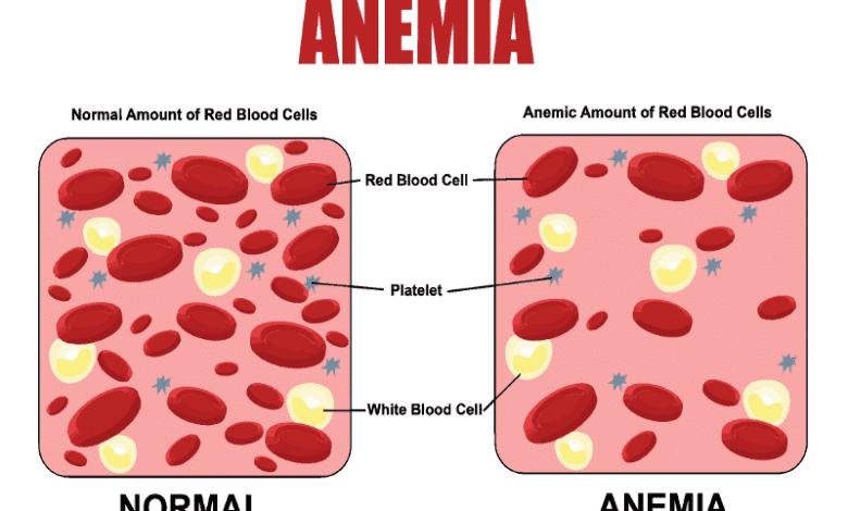 начини за лечение на анемия и причини