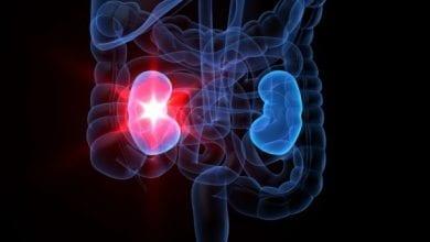 Photo of Хроничната бъбречна недостатъчност – топ причини и лекове