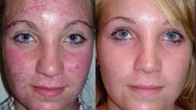Photo of 23 Изненадващи начини за премахване на белези от акне естествено