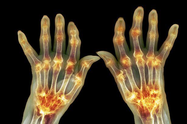 Photo of Артрит: Причини, видове и лечение на артрит