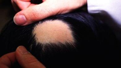Photo of Алопеция Ареата: 9 естествени начини за лечение на косопад