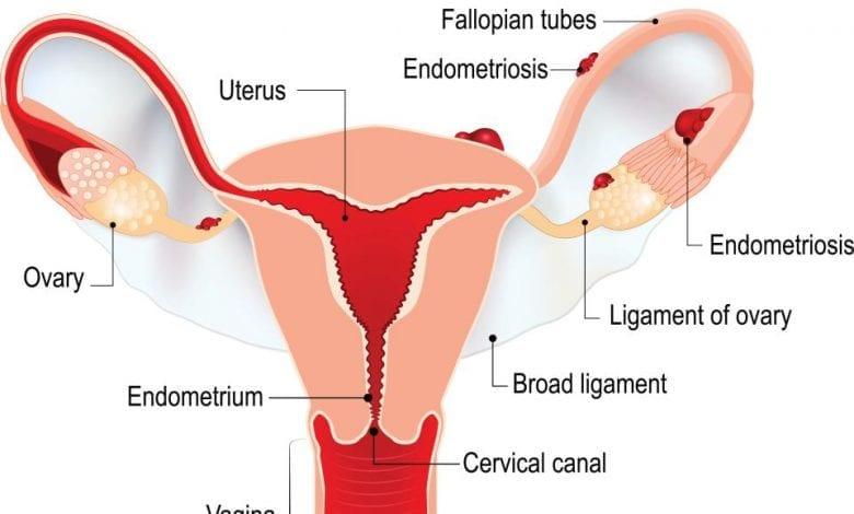 Photo of Ендометриоза: Причини, усложнения и лечение