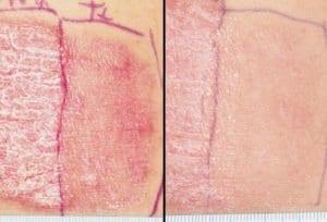 Проф. Кадурина: При псориазис лечението е постепенно - леката форма не се атакува агресивно