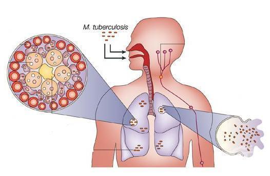 туберкулозата