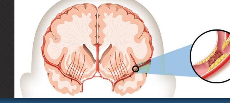 Photo of Инсулт: Причини, симптоми, диагноза и лечение