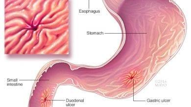 Photo of Какво е язва ? Задълбочаваща се рана в стомашната или чревната стена
