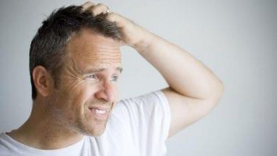 Photo of Чести причини за болки и чувствителност на скалпа