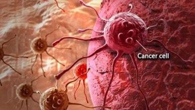 Photo of Рак: факти, причини, симптоми и изследвания