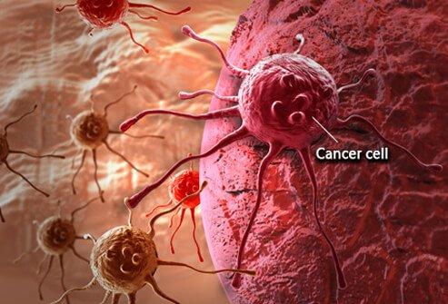 ракова клетка - какво е рак ?