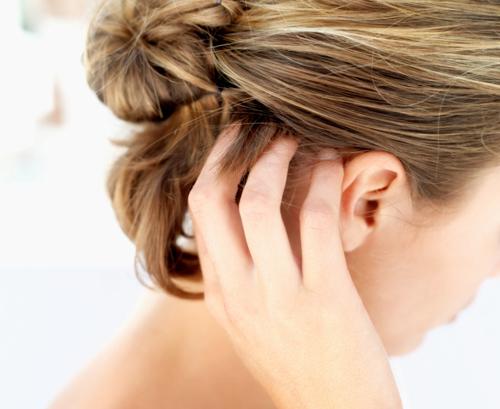 5 причини за сърбящ скалп