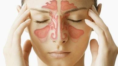 лечение на синузит с билки