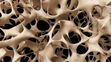 Остеопорозата: Причини, симптоми, признаци