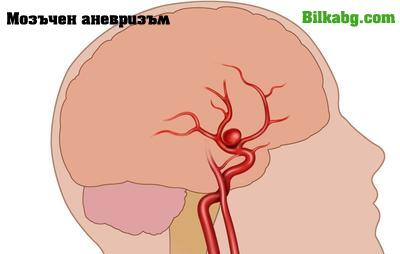 мозъчен аневризъм
