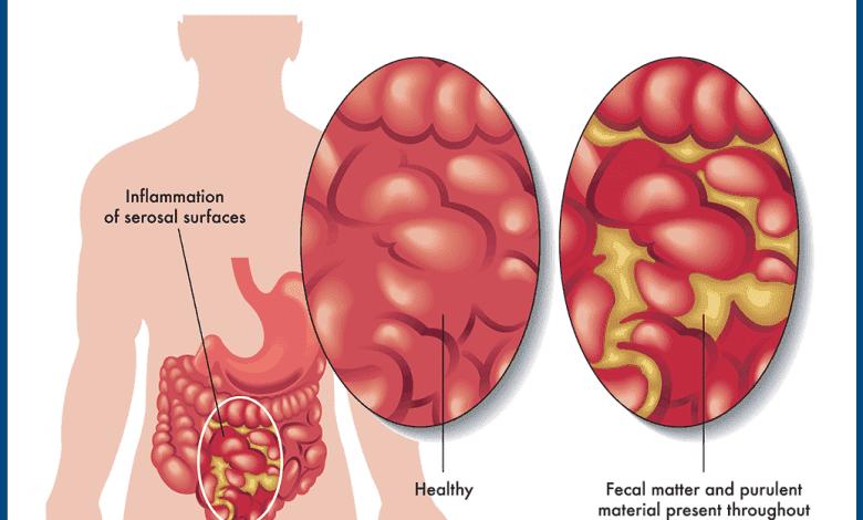 Photo of Перитонит: Причини, симптоми и лечение