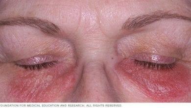 Photo of Контактен дерматит: Причини, симптоми и лечение