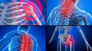 Фибромиалгия - Симптоми и Причини