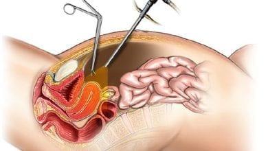 Лапароскопия: Предназначение, подготовка, процедура