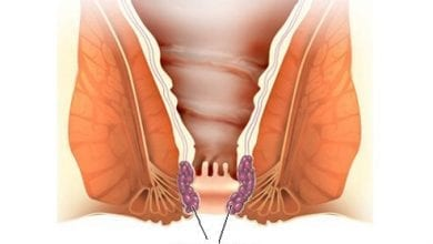 Хемороиди: Причини и лечение