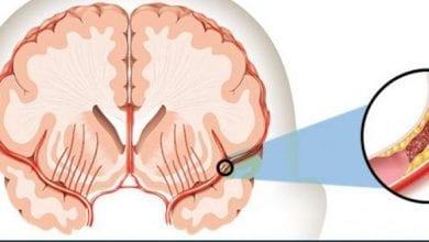 Photo of Инсулт: 10 симптоми на инсулт и 4 начина за Лечение