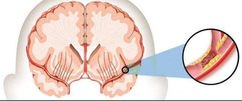 какво-е-инсулт-мозъчен-удар