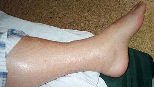 подуване-на-крака-причини-лечение
